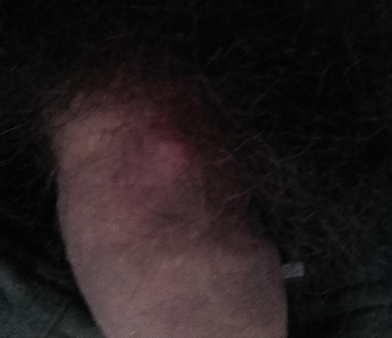 penise obrázky
