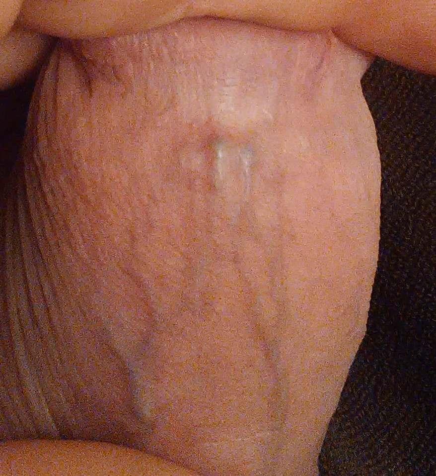 Puctures penisu